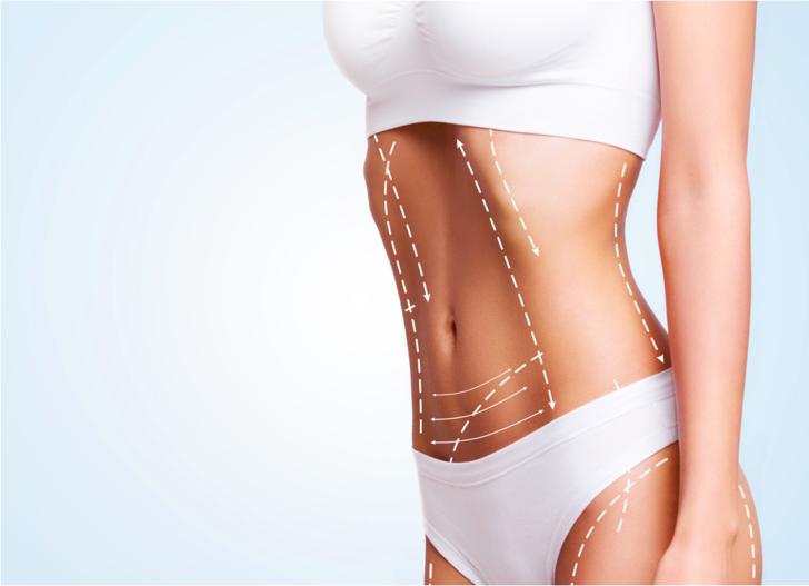 Bölgesel zayıflamada lipoliz ile vücut şekillendirme