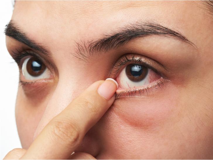 Kadınlarda göz kuruluğu neden olur?