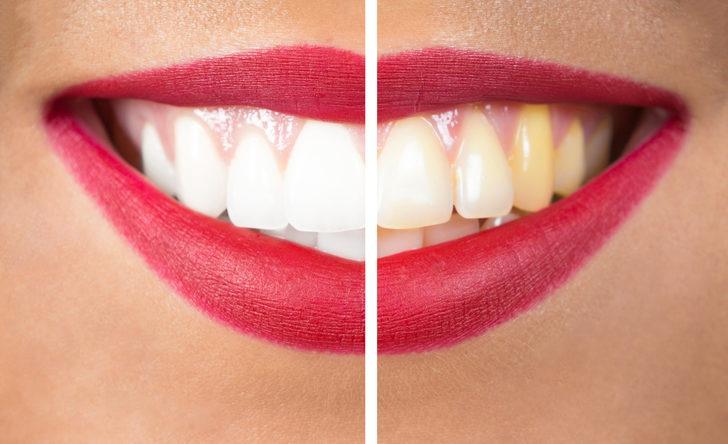 Diş beyazlatmada kalıcı çözüm dental lazer tekniği