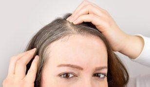 Stres nasıl saçları beyazlatıyor? Bilim insanları açıkladı!