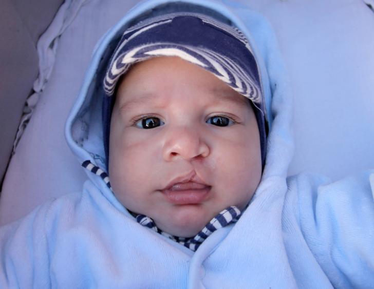 Dudak damak yarıkları her bebekte aynı mı gelişir?