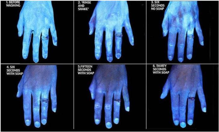 Bu görüntüler şoke etti! Ellerinizi yıkamadan öncesi ve sonrası