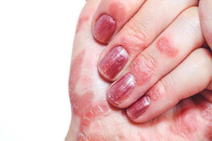 Egzaması olanlar ellerini yıkarken ciltlerini nasıl korumalı?