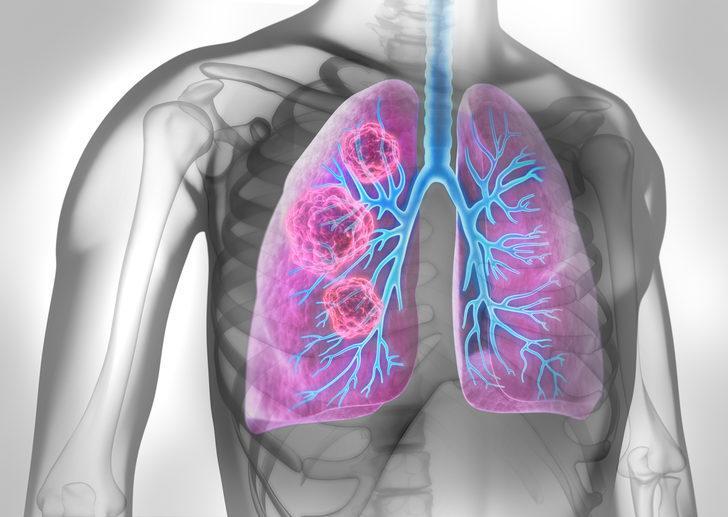 Akciğer kanseri: Nedenleri, belirtileri, tedavisi