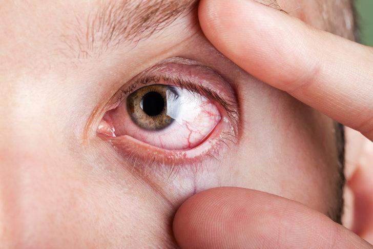 Detaylı Göz Kuruluğu Rehberi:Neden Olur? Ne İyi Gelir? Belirtileri Neler?