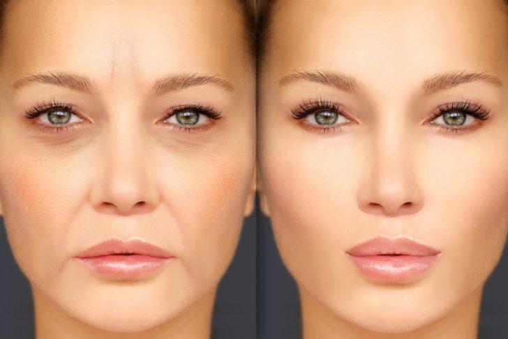 Dolgu enjeksiyonu estetikleriyle yüzünüzdeki birçok sorun ortadan kalkıyor