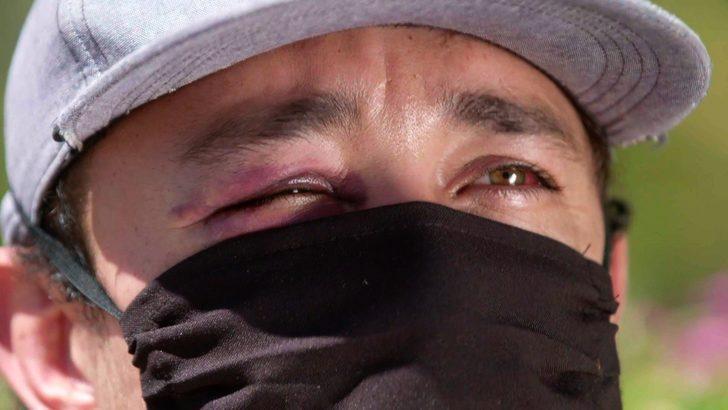 Meksika'da şiddete maruz kalan sağlık çalışanları: 'İşimizi yapmamıza izin verin'