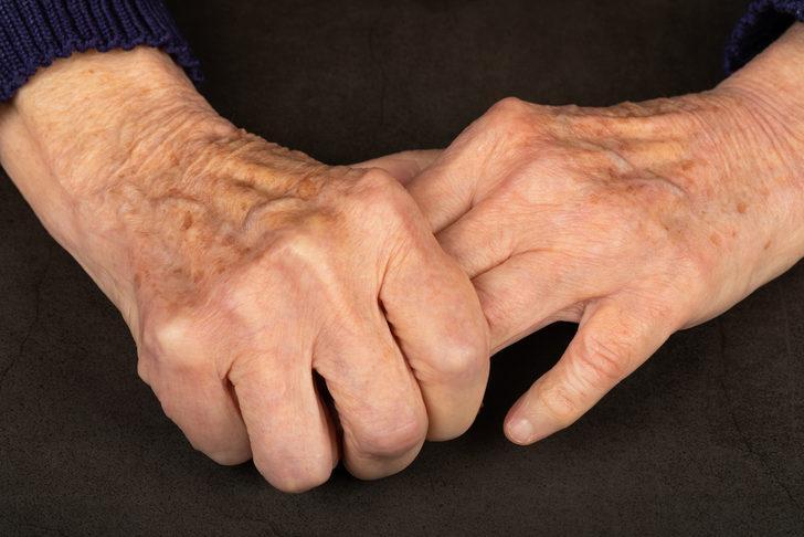 Detaylı Parkinson Hastalığı Rehberi: Nedir? Belirtileri Nelerdir?