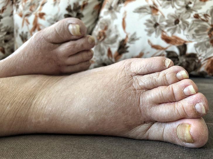 En Detaylı Fil Hastalığı Rehberi: Nedir? Tedavisi ve Belirtileri