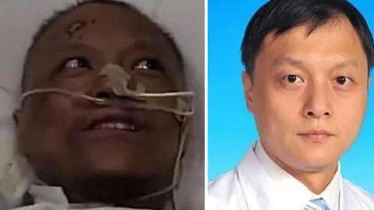 Ten rengi değişen Çinli doktor koronavirüsten öldü!