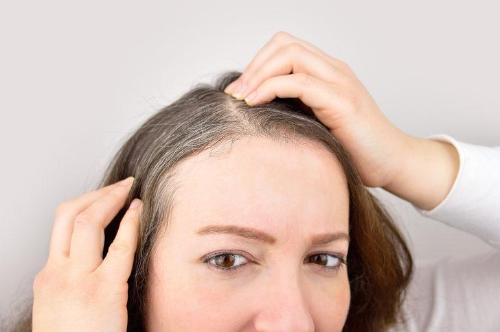 Bu doğal yöntemler saçlardaki beyazları yok ediyor! Patates, soğan ile...