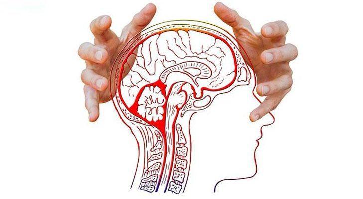 Beyin Kanaması : Nedenleri, Belirtileri, Tedavisi