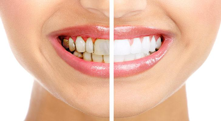 Dişlerinizi Doğal Yollarla Beyazlatmanın 10 Yolu