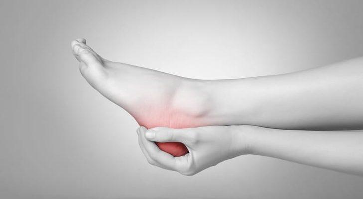 Topuk Dikeni Tedavisi Nasıl Yapılır? Ağrısı Nasıl Azaltılır?