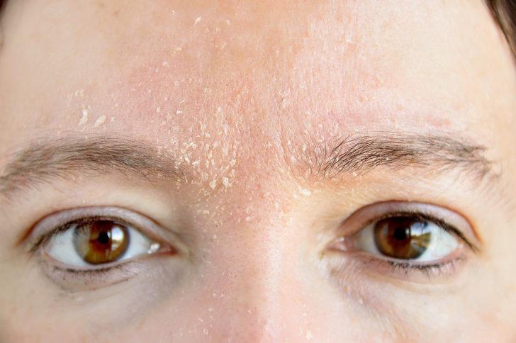 Kuru ve yağlı cilde ne iyi gelir?