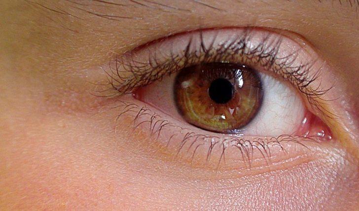 Göz çevresinde oluşan kırışıklıklar için doğal ve kesin çözümler