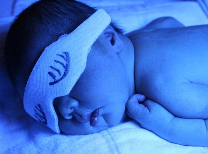 Yeni doğan bebeklerde sarılık rehberi