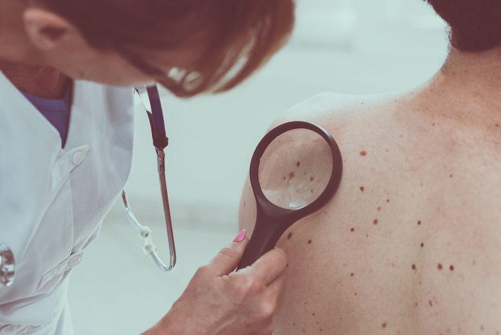 Cilt Kanseri: Nedenleri, belirtileri, tedavisi