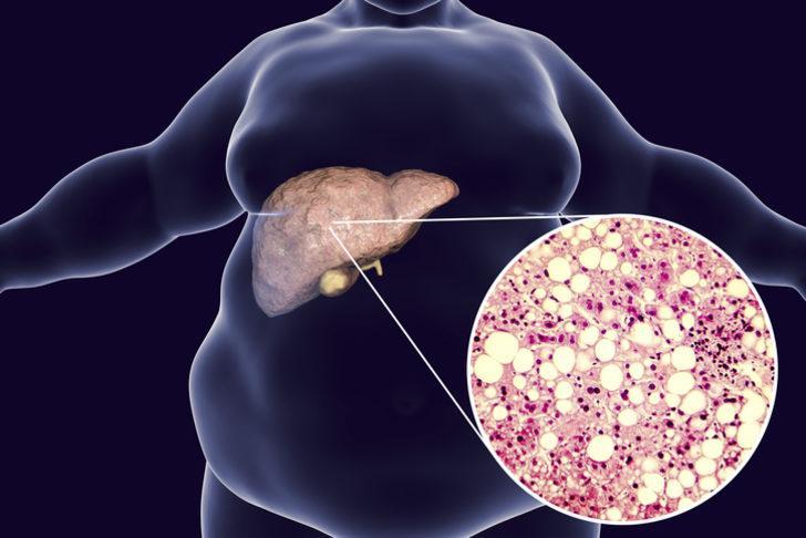 Obezite ameliyatı kalkıyor mu? Obezite cerrahisinde son gelişme!
