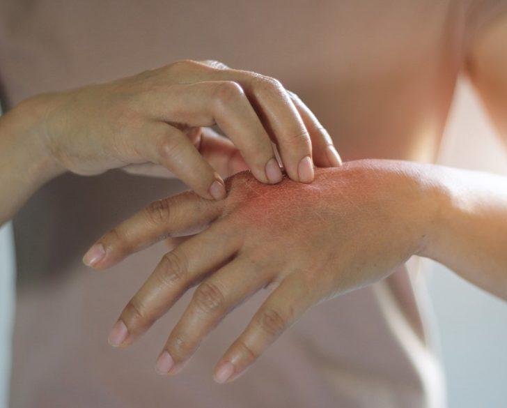 Yıpranmış ve kurumuş eller için mezoterapi