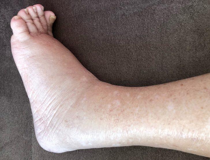 Fil hastalığı : Nedenleri, belirtileri, tedavisi