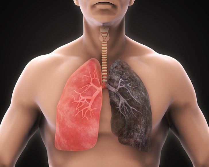 KOAH Hastalığı: Nedenleri, belirtileri, tedavisi