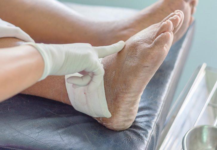 Gut hastalığı : Nedenleri, belirtileri, tedavisi