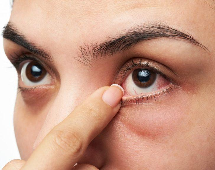 Göz Tansiyonu : Nedenleri, belirtileri, tedavisi