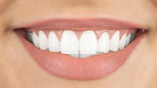 Dişleriniz 3 dakikada bembeyaz olacak!