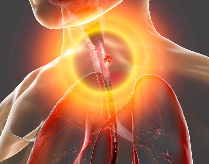 Gırtlak kanseri : Nedenleri, belirtileri, tedavisi