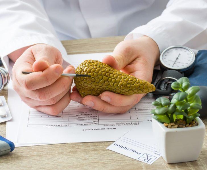 Pankreas kanseri : Nedenleri, belirtileri, tedavisi