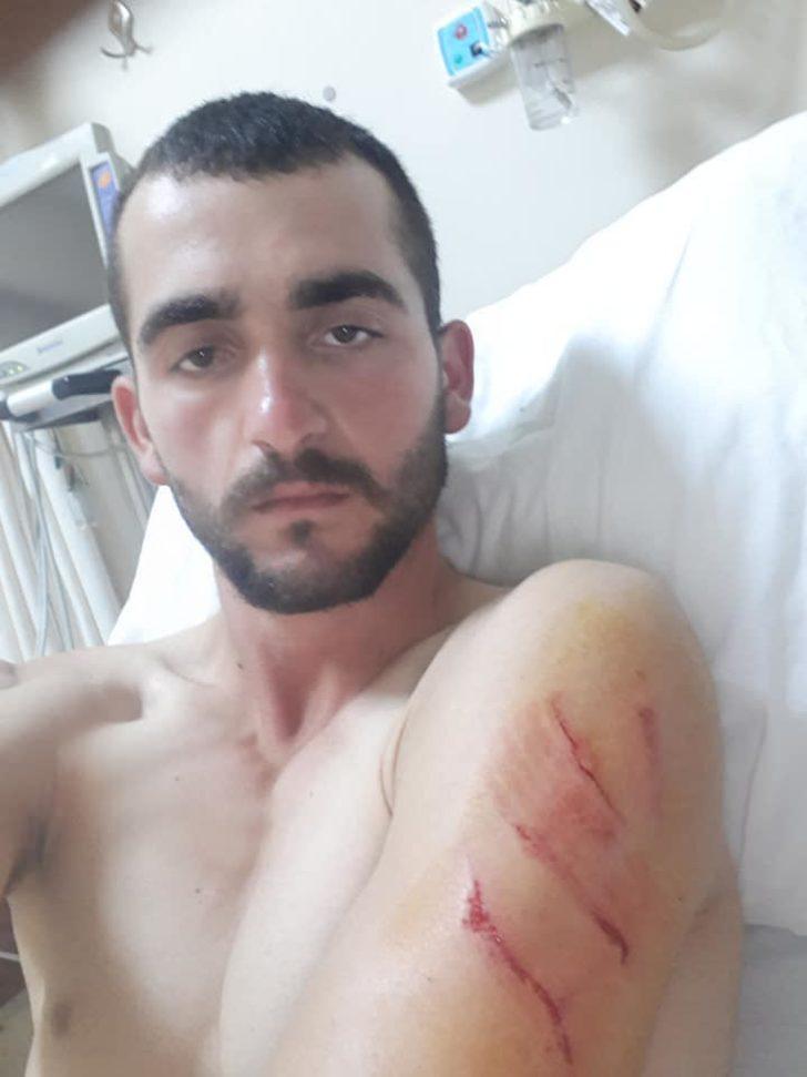 Kendisine saldıran ayıdan köpekleri kurtardı
