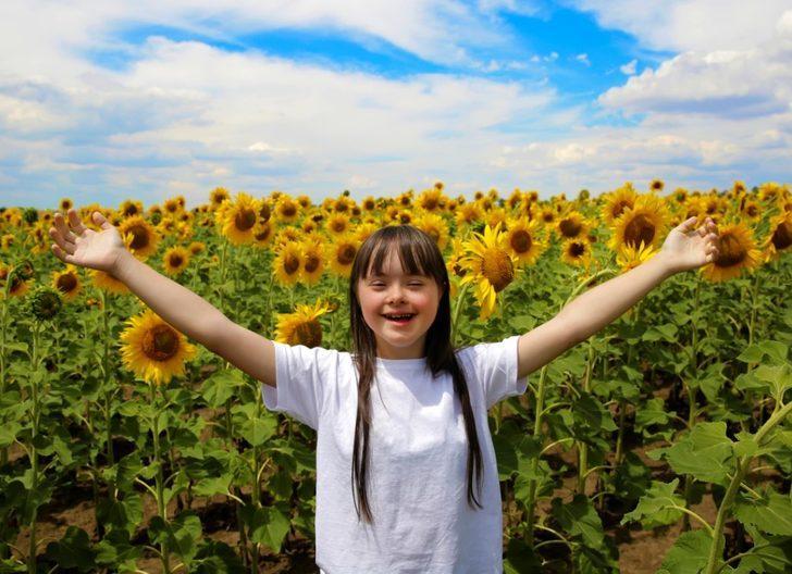 Özel insanlar: Down Sendromu rehberi
