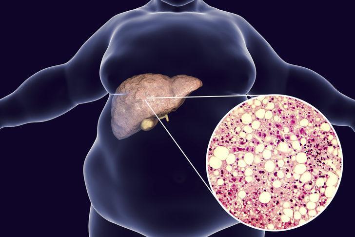 Karaciğer yağlanması: Nedenleri, belirtileri, tedavisi