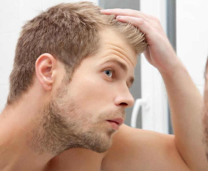 Genetik dökülmesinde saç ekimi