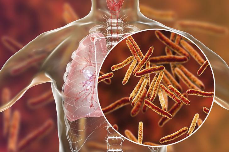 Tüberküloz (Verem): Nedenleri, belirtileri, tedavisi