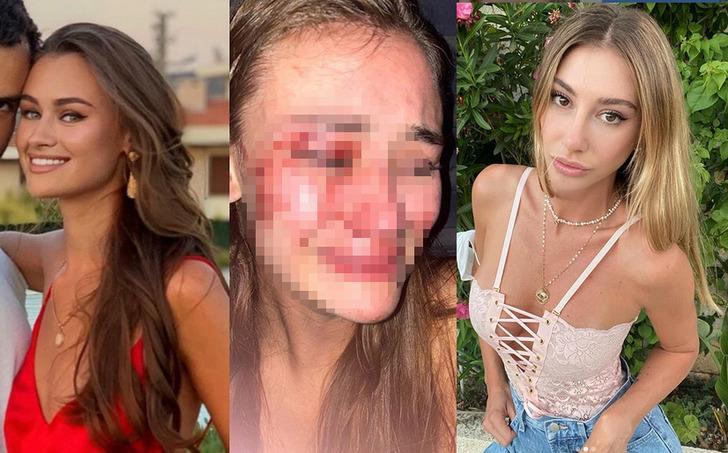 Şeyma Subaşı'nın model arkadaşı Daria Kyryliuk güvenlik görevlilerinin saldırısına uğradı