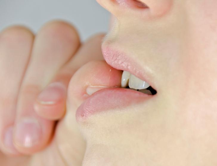 Yetişkin ve çocuklarda tırnak yeme alışkanlığı nasıl bırakılır?