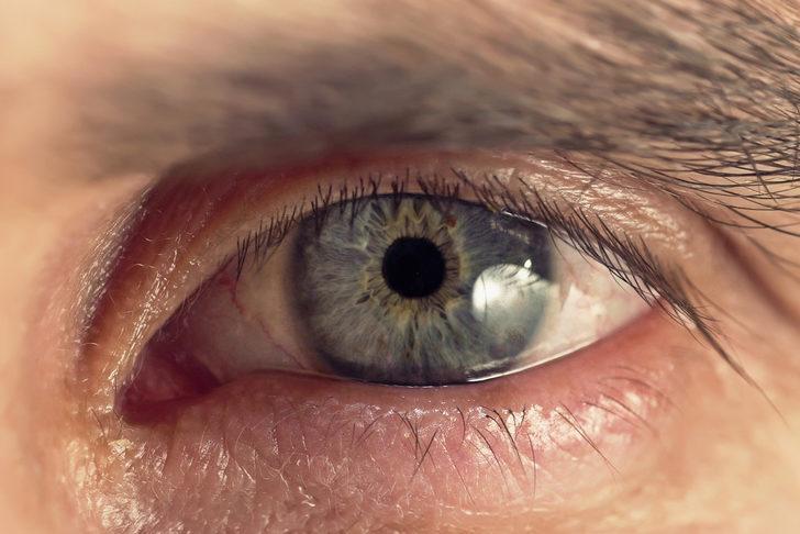 Sarı nokta hastalığında göz rengi de etkiliymiş!