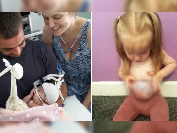 Küçük kız midesi, bağırsak ve karaciğeri dışarıda yaşıyor