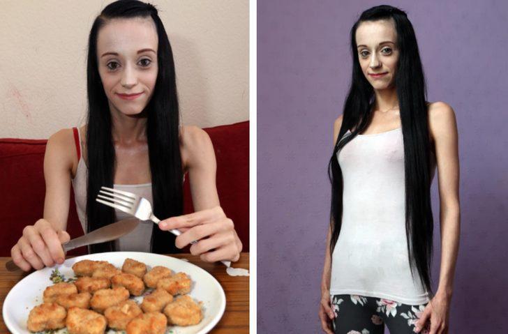 Yeme bozukluğu nedeniyle sadece tavuk nugget yiyen kadın kör kalabilir