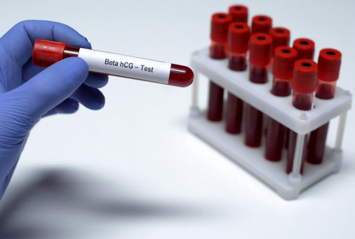 Beta HCG nedir? Beta HCG yüksekliği, normal değeri