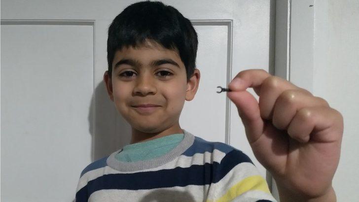 7 yaşındaki çocuğun burnuna kaçan Lego parçası 2 sene sonra düştü