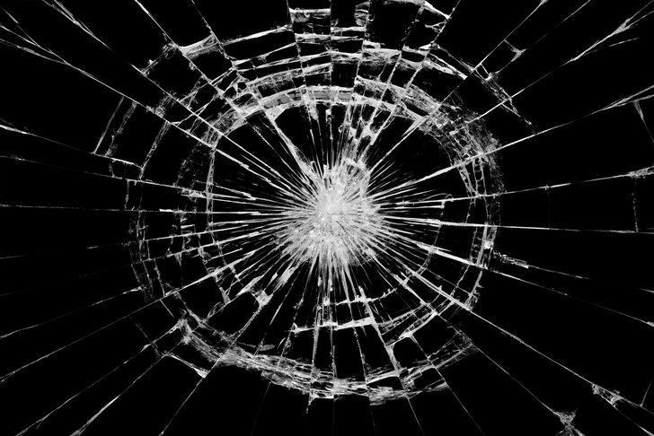 Setteki Kaza Sonucu Yüzünde Derin Yaralar Açıldı!