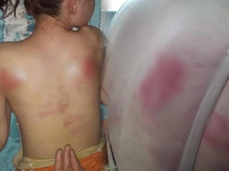 14 Yaşındaki Kızını İngiliz Anahtarı ile Dövdü! Dövme Sebebi Ağızları Açık Bıraktı!