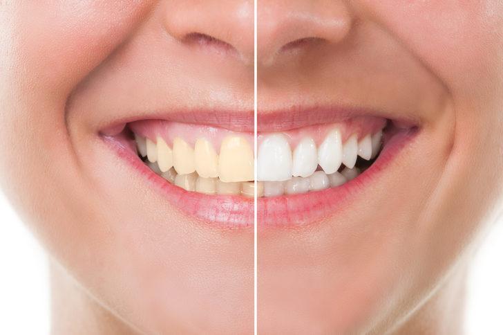 Dişlerinizi inci gibi bembeyaz yapacak 3 doğal yöntem
