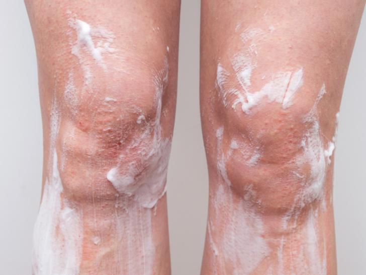 Çilek bacaklara ne sebep olur ve nasıl kurtulursunuz?