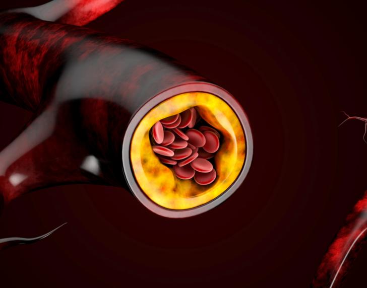 Sessiz ilerleyebilir! Kolesterolün en önemli belirtileri...