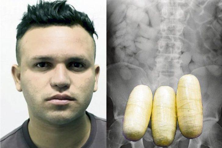 X-ray'de çıkan görüntüye kimse inanamadı! 99 poşet kokain çıktı!