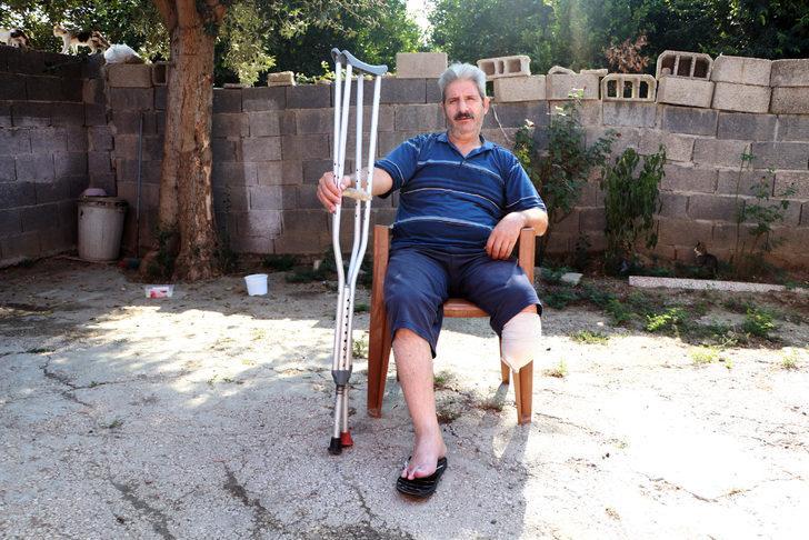 Buerger hastalığından dolayı bacağını kaybetti, gençleri uyardı: Sigarayı bırakın
